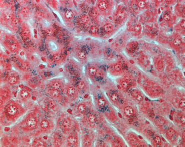 Perl's Special Stain – demonstrating ferric iron in the liver